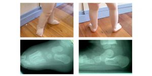 Problem Flat Feet