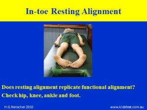 Resting alignment of in-toer
